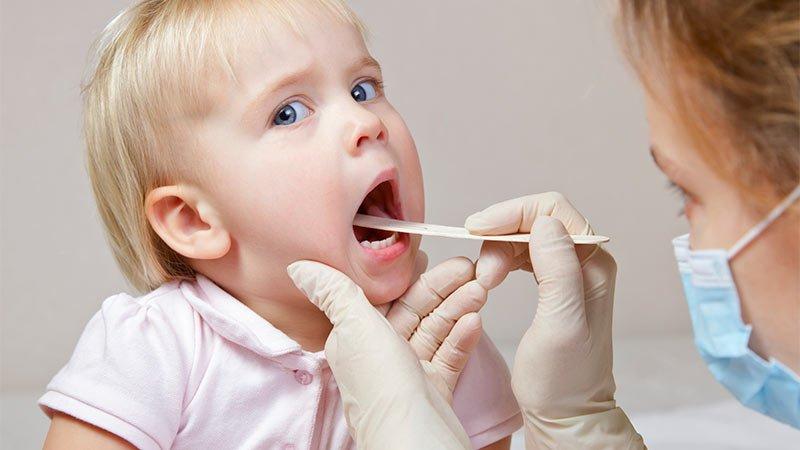 L'angine blanche chez les enfants